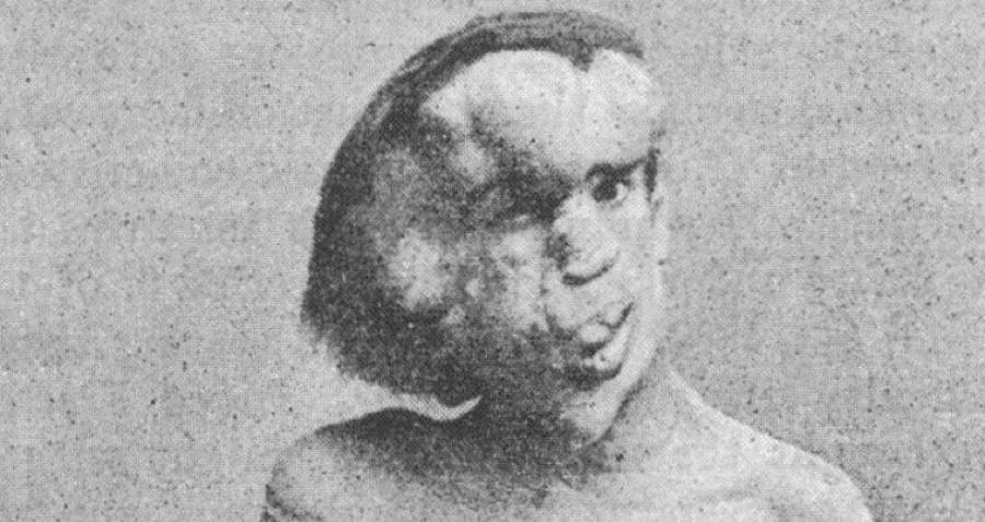 Joseph Merrick The Elephant Man