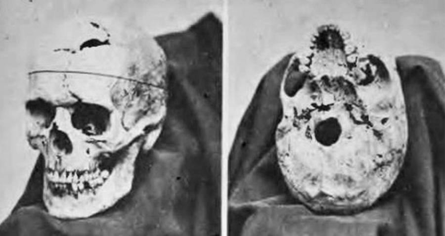 Gage Skull
