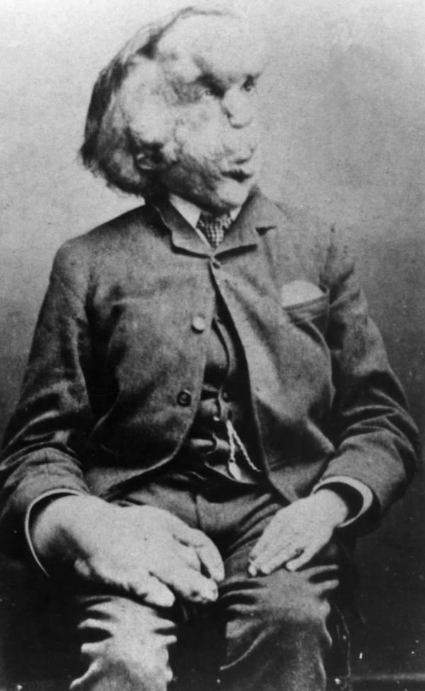 Joseph Merrick Portrait Face