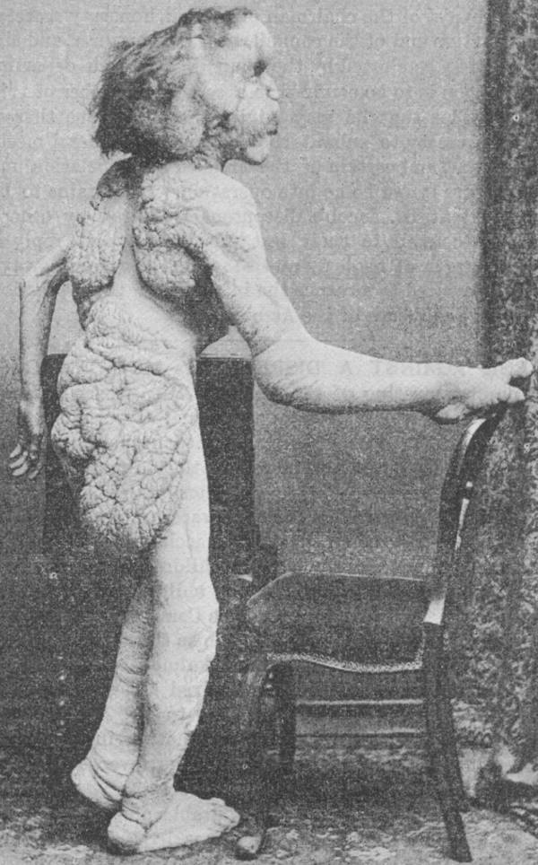 Joseph Merrick Profile