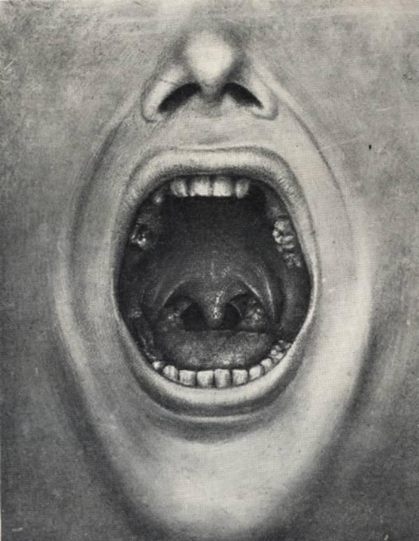 Cotton Teeth Pulling