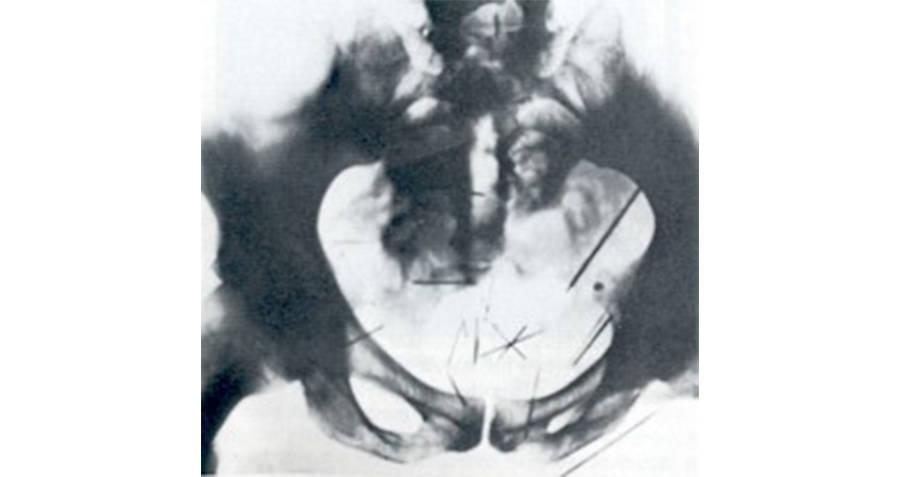 Albert Fish Pelvis