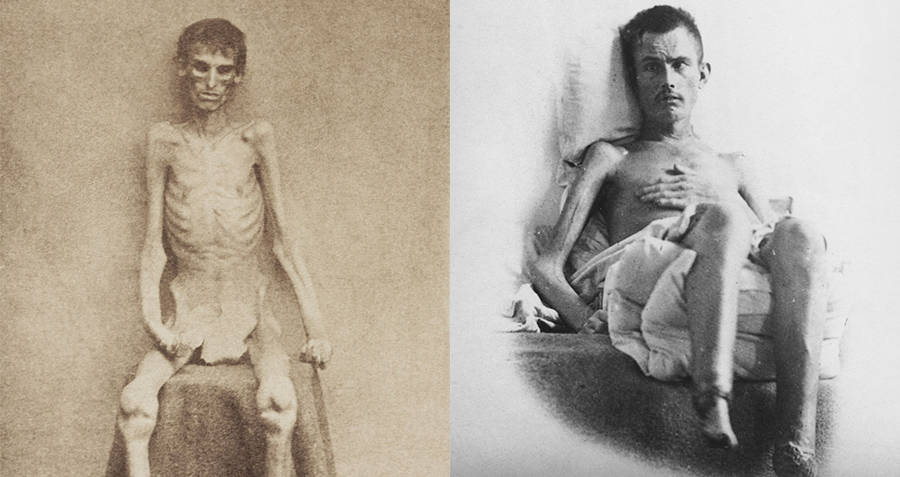 Andersonville Prison Emaciated Inmates