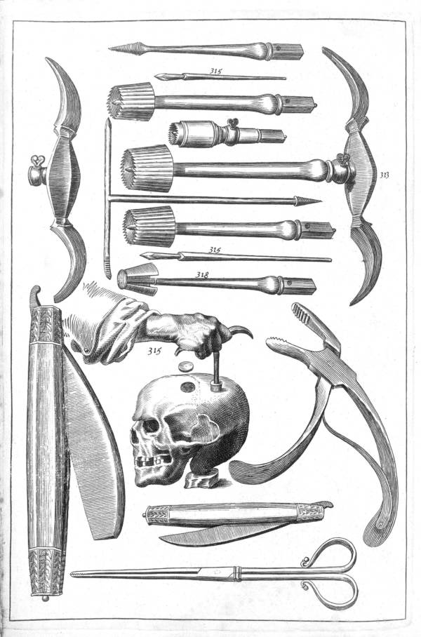 Trepanation Diagram