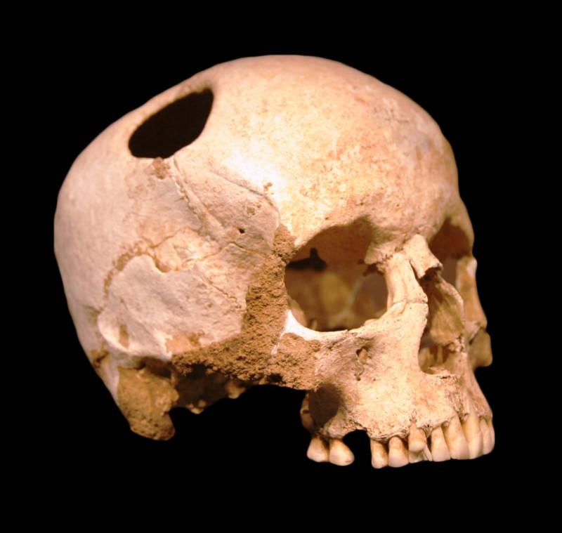 Trepanation Skull